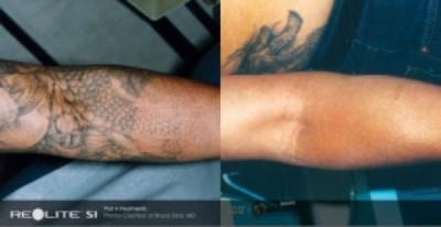 Laser-Tattoo-Removal-2