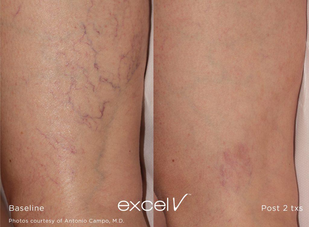 cutera leg veins before and after 1064_Vascular_13