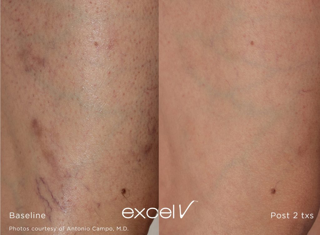 cutera leg veins before and after 1064_Vascular_14